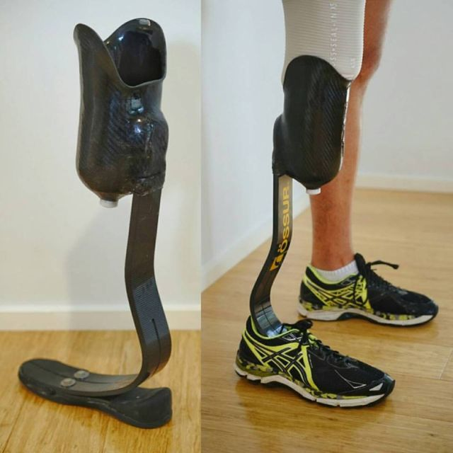 Cheetah Xplore Running Prosthesis