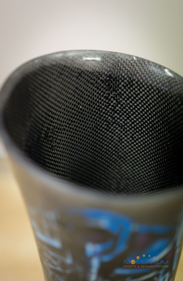 Custom Carbon Fibre Socket Above Knee Prosthesis