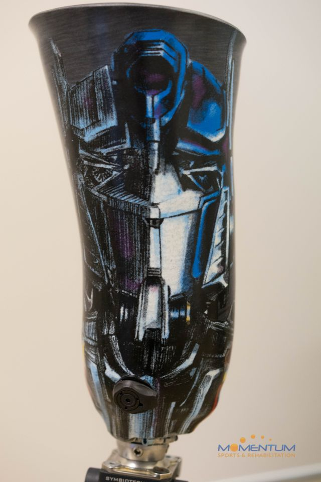 Custom Carbon Fibre Socket Above Knee Prosthesis