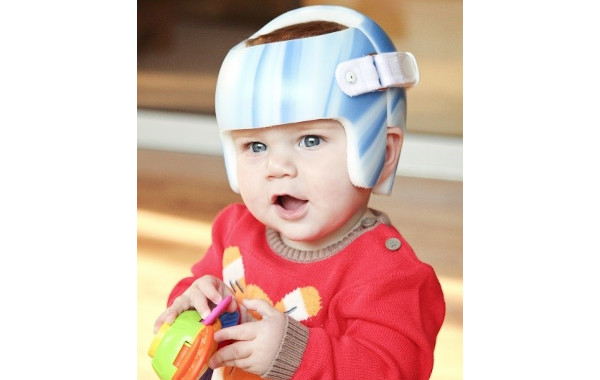 Paediatric Reshaping Helmet